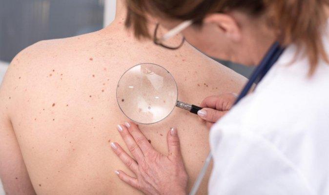 Melanoma diagnózis -  egy valós történet háttere