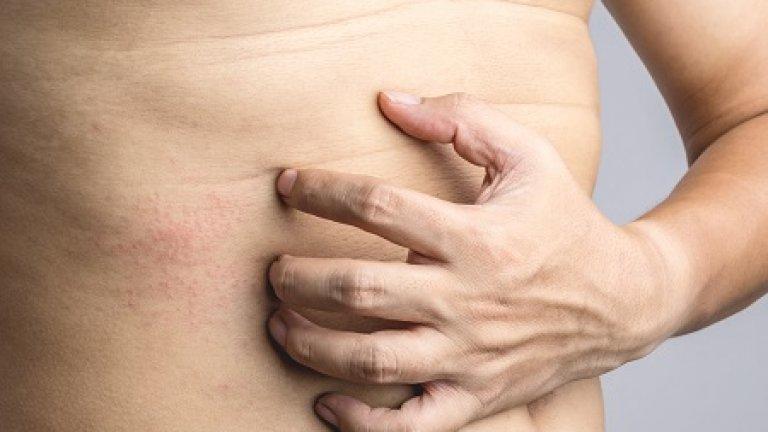 Veszélyes, ha viszket az anyajegy? Akár bőrrák jele is lehet a viszketés
