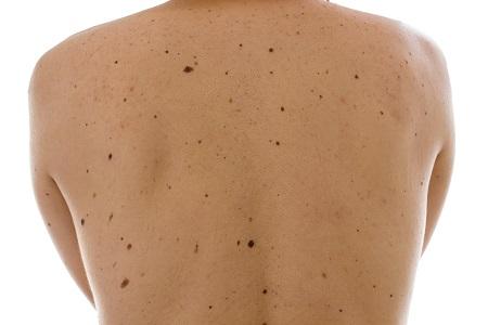 Kevés anyagjegy is lehet a melanoma rizikófaktora, fontos az anyajegyszűrés.