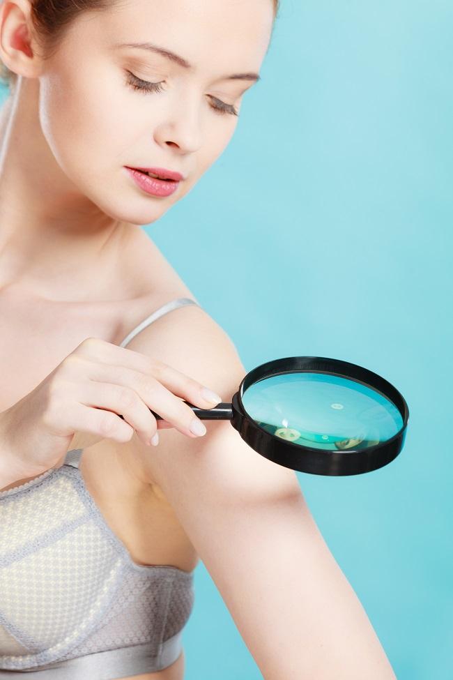 nők papillómái a nemi szervek kezelésében hatékony orvosság a szemölcsök ellen