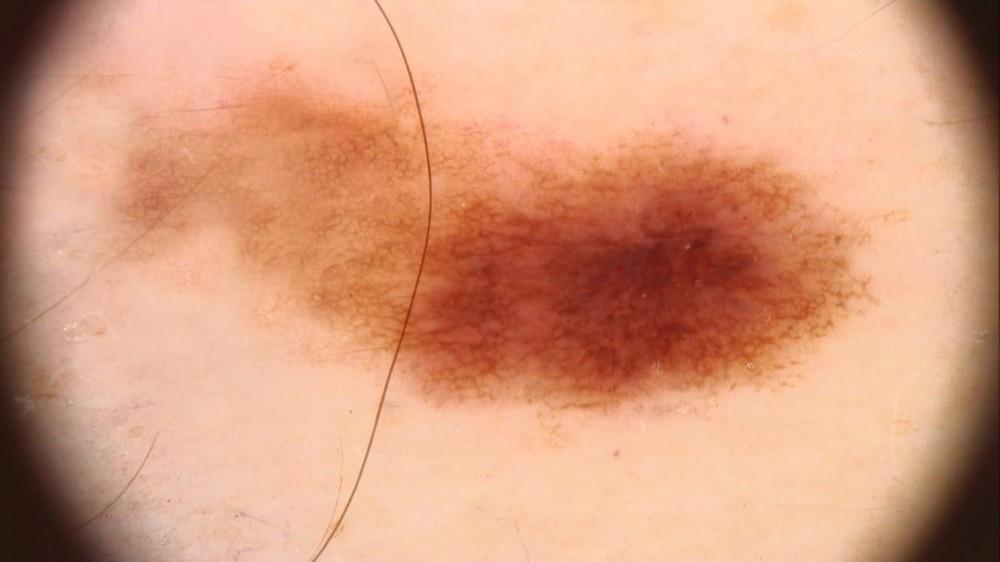 Bőrdaganat szűrés